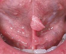 Hình ảnh sùi mào gà ở lưỡi 3