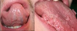 Triệu chứng sùi mào gà ở miệng, ở lưỡi như thế nào 2